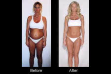 Coming off the pill weight loss yasmin image 26